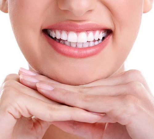 beautiful-teeth-dentist-north-and-dover