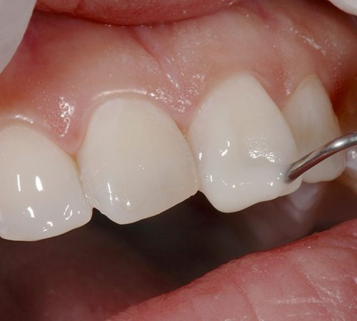 best-dentist-north-and-dover-MA